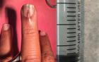 男子中指长小指甲