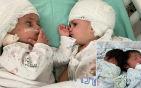 连体婴儿终于对视.jpg