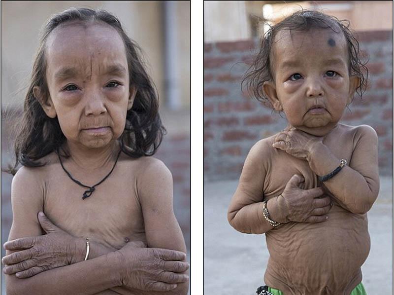 印度姐弟患罕见疾病 幼童皮肤褶皱如老人