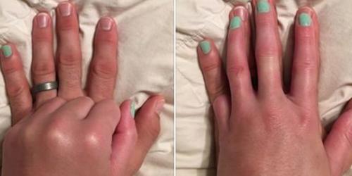 我做你的小拇指:女子无尾指 丈夫替其涂指甲油