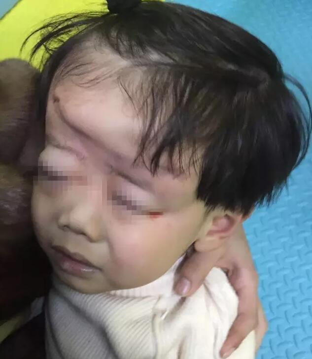 男童头部遭碾压变形 玩儿童电动车时掉到车下