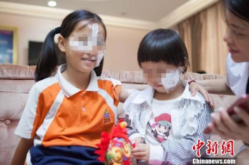 广东两名被毁容女童在穗均获公益救助有望恢复