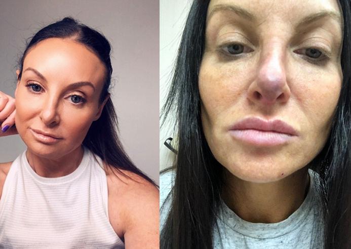 整容鼻子失败_美国女子整容失败鼻子变形 用水蛭治疗竟然恢复