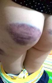 小学生因未完成作业 身体多处被老师打伤(图)