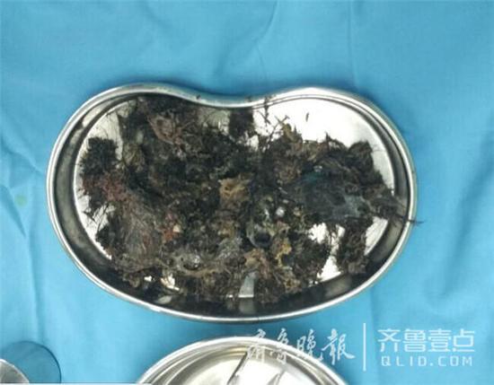 青岛5岁女童爱偷吃头发 胃里取出大量毛发结石
