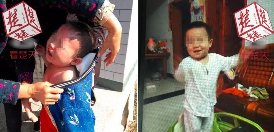 男童被开水烫伤身亡:在车上孩子还喊着要喝水喝奶…