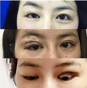 女子整形变大小眼:整容变