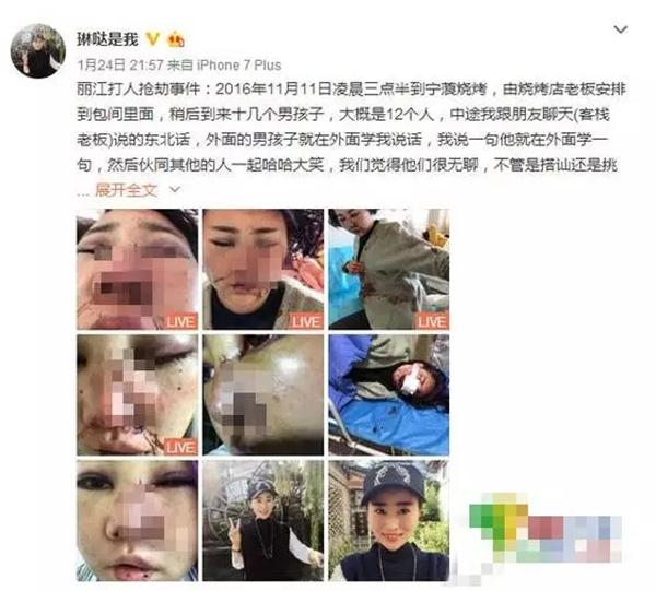 琳哒是我丽江被打事件始末的最新消息 撤回民事诉讼诉引网友责骂