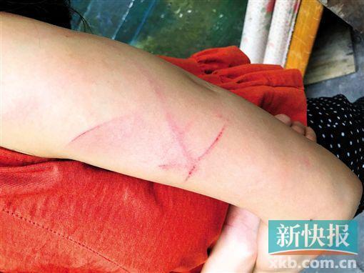 女子因麻将桌上生口角遭牌友持刀殴打 手臂被划伤